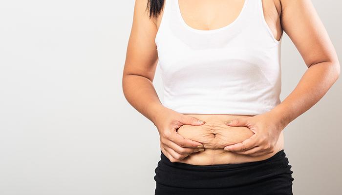 pierderi de grăsime lats rezultatele pierderii în greutate m3