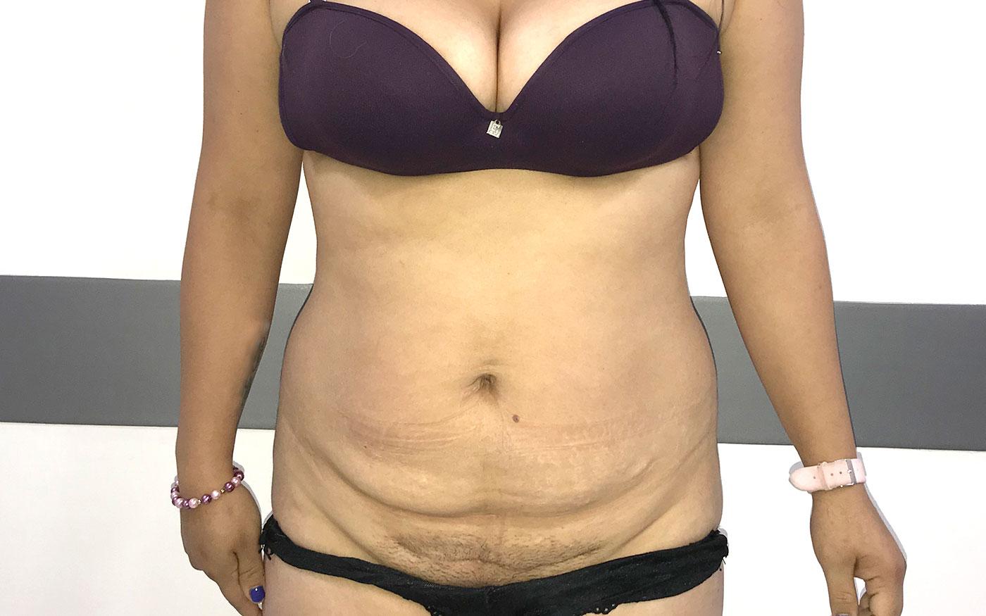 înainte și după pierderea în greutate tummy tuck