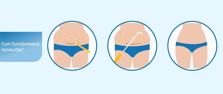 arzător de grăsimi f-22 doar puternic pierde 5 grăsimi corporale în 3 luni
