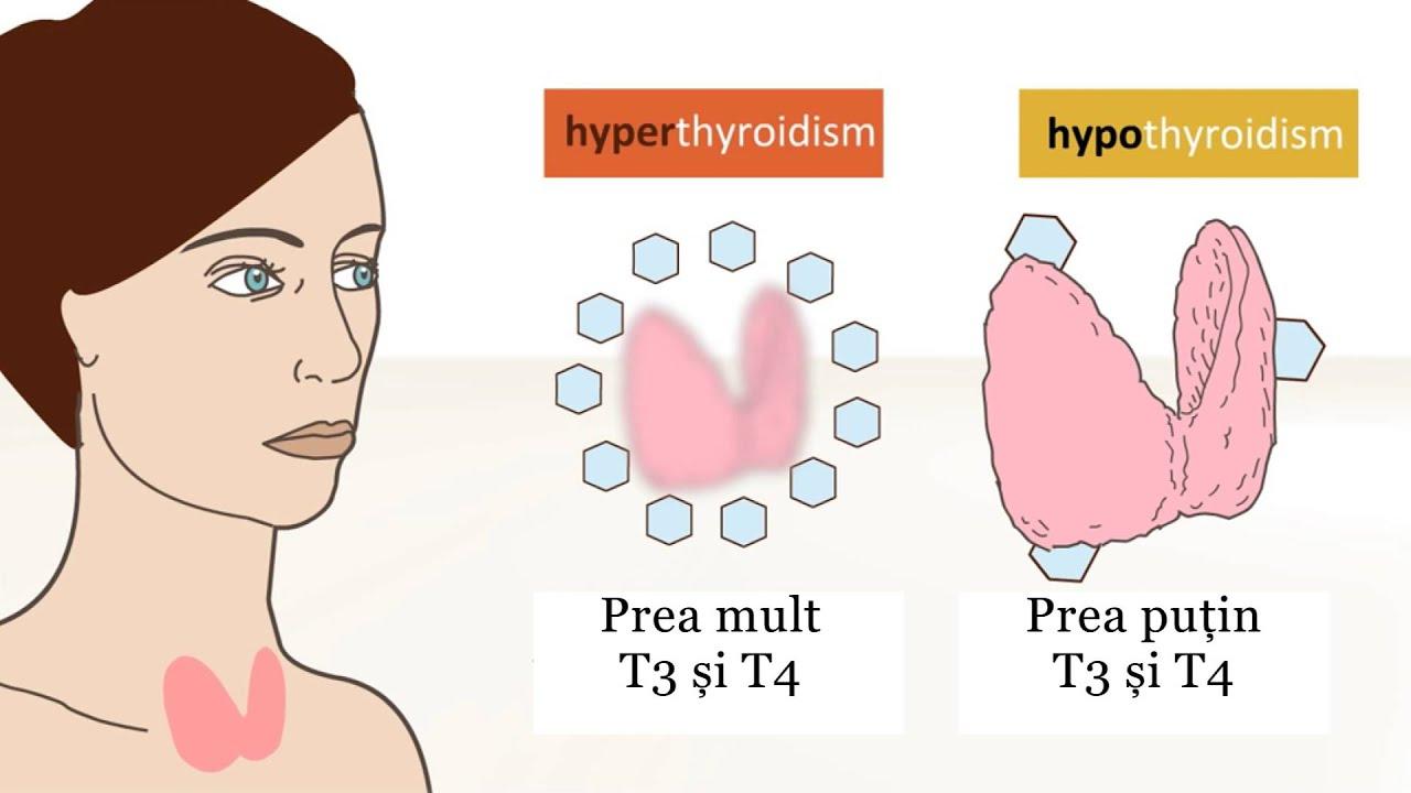 slabire glanda tiroida)
