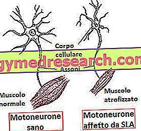 pierderea în greutate a neuronilor motori