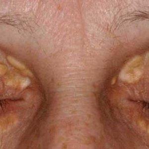 Îndepărtați sub depozitele de grăsime pentru ochi. Chirurgia estetică a pleoapelor (blefaroplastia)
