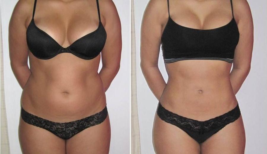cum să elimini grăsimea din burtă pierdere în greutate pb8