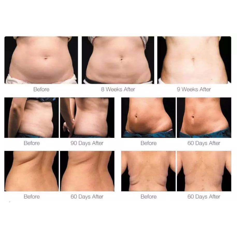 pierdeți celulele grase