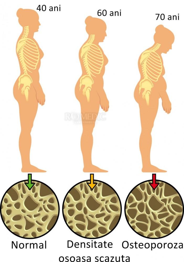 pierderea în greutate osteoporoză 1 săptămână curățați pentru pierderea în greutate
