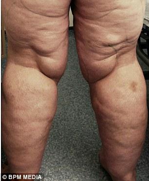 puteți slăbi cu lipedema scădere în greutate ozempic