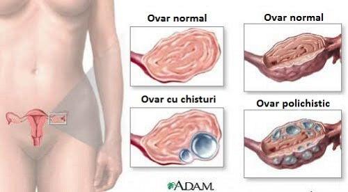 pierdere în greutate eliminarea chistului ovarian