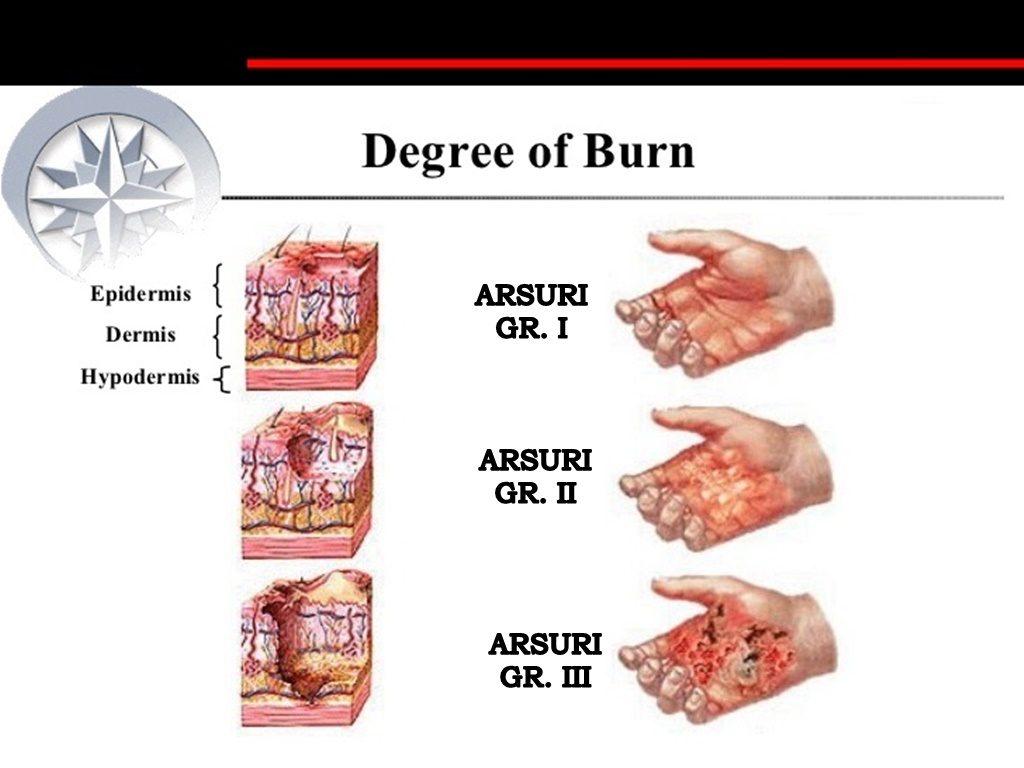 Arsurile de grăsime în flacăra glucidelor