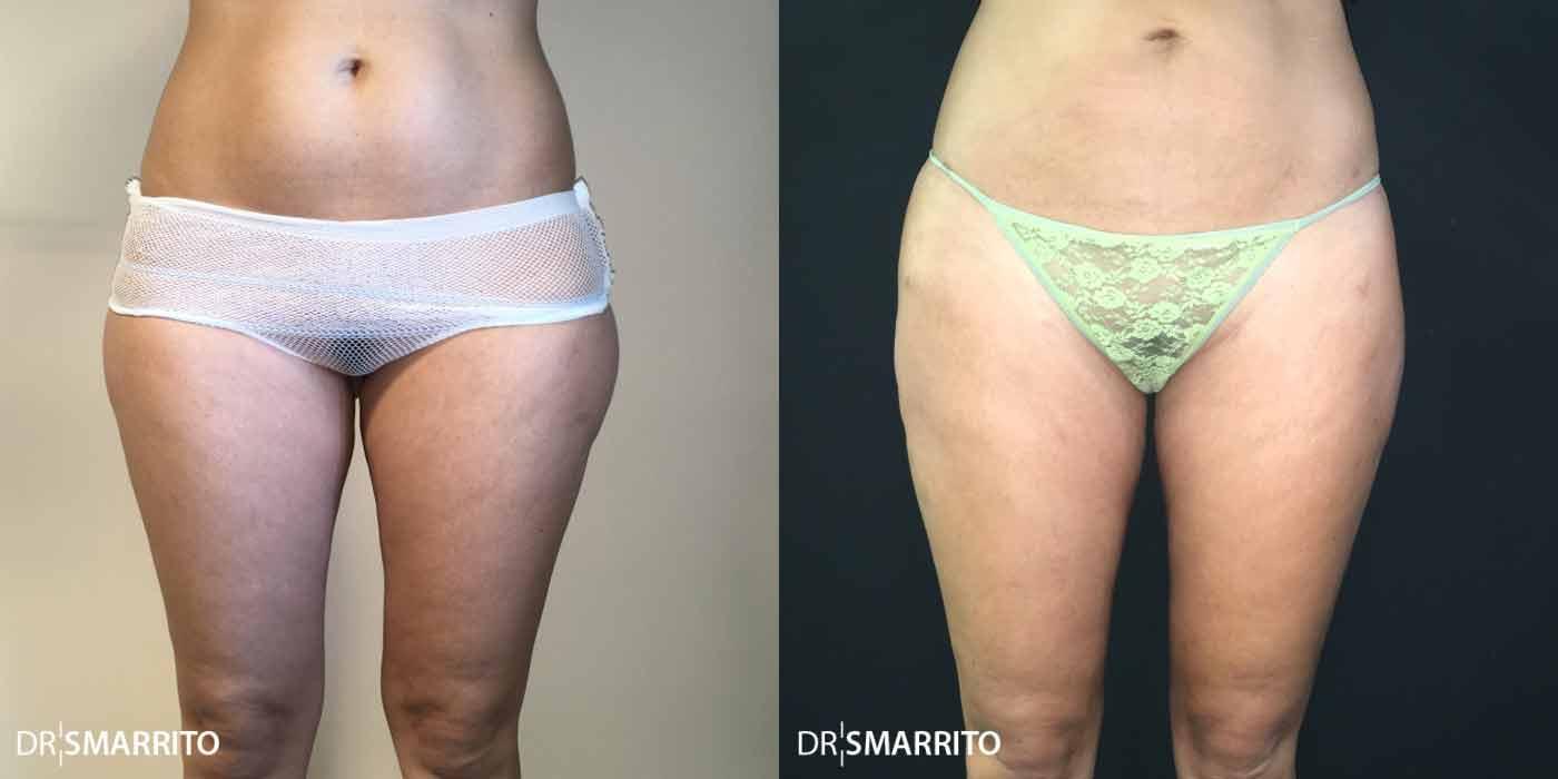 căutare pierdere în greutate corp subțire adelgazante naturale