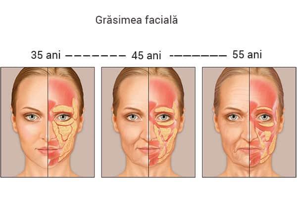 cauzele pierderii de grăsimi faciale