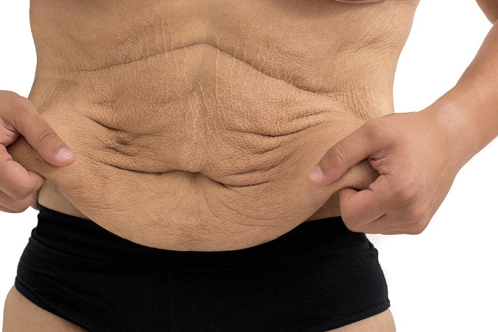modalități de a pierde grăsimea intestinală sfaturi de pierdere în greutate pentru burtă plată