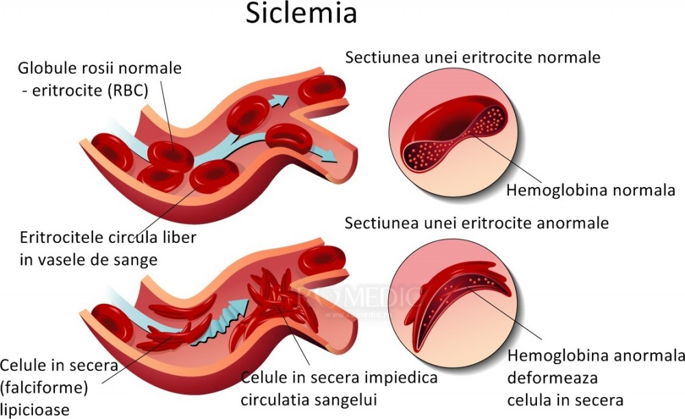 pierderea în greutate a anemiei celulelor)