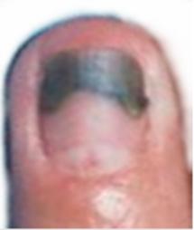 pierderea în greutate și unghiile slabe