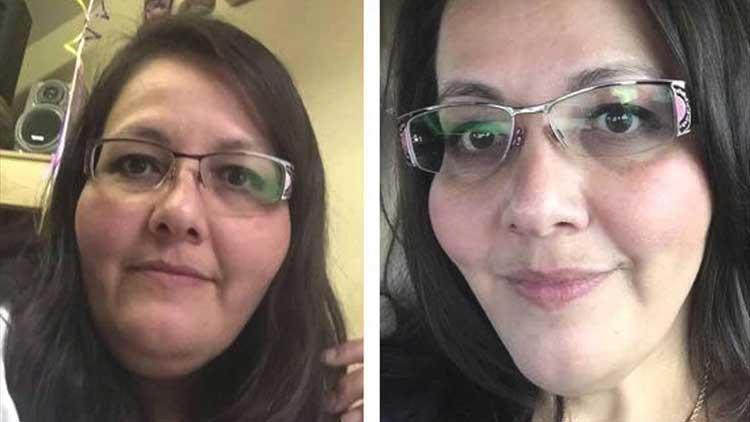 sfaturi de pierdere în greutate pentru obezi morbid slăbește vârsta de 65 de ani